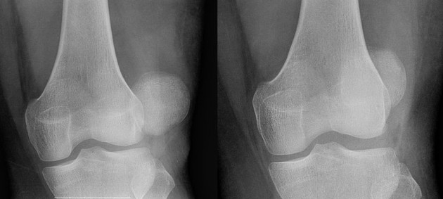 Patella dislocation / subluxation